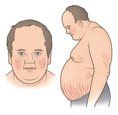 Синдром Иценко-Кушинга (гиперкортицизм)
