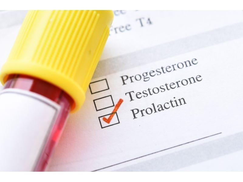 На какой день цикла сдавать пролактин женщинам