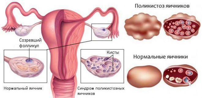 Поликистозе яичников