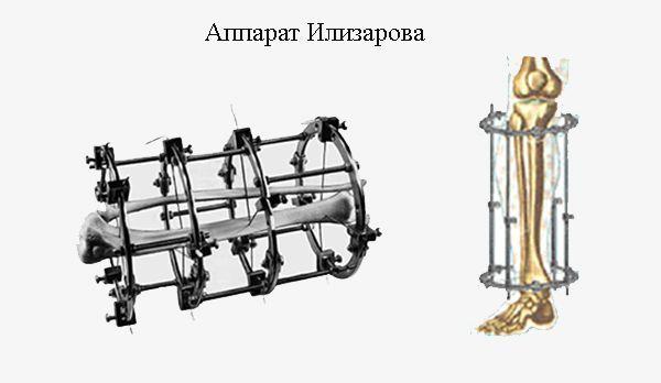 Аппарат Илизарова